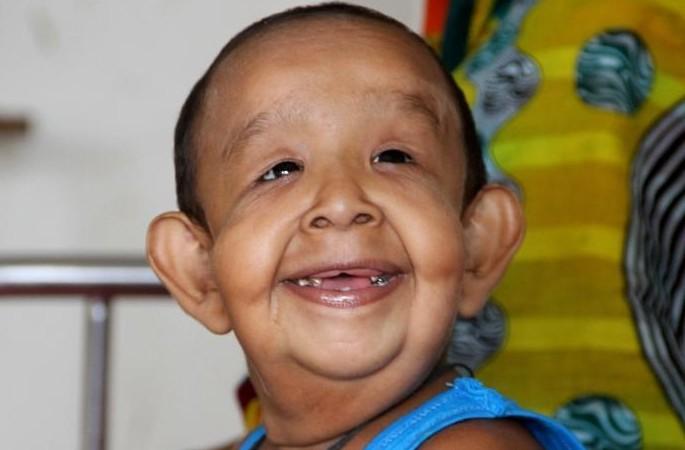 80세 노인으로 보이는 방글라데시 4살 소년, 지능 수준 뛰어나